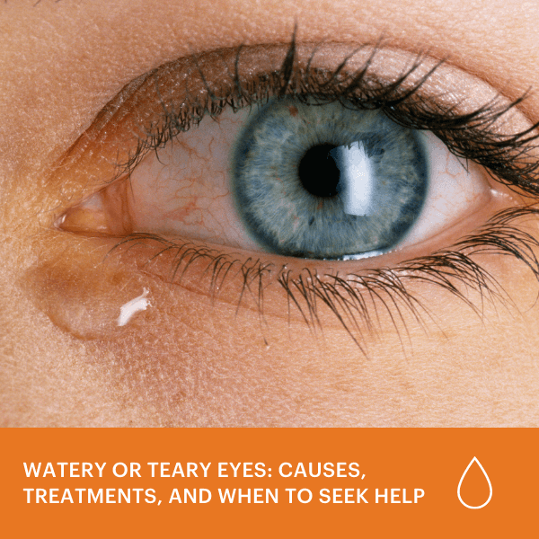 Watery or Teary Eyes: Causes, Treatments, & When to Seek Help